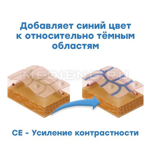 Pentax технология i-scan CE