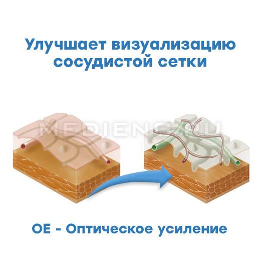 Pentax технология i-scan OE