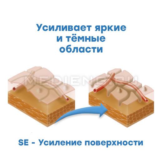 Pentax технология i-scan SE