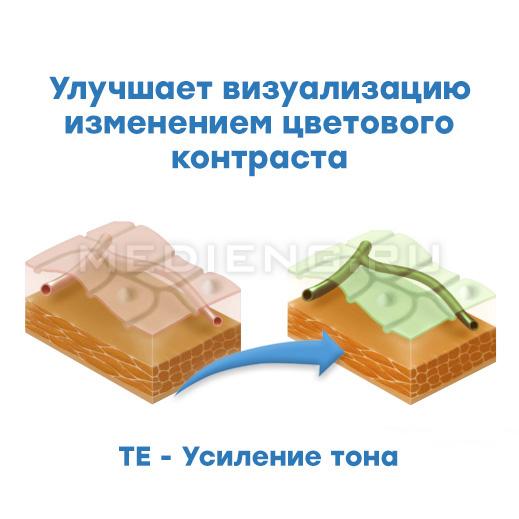 Pentax технология i-scan TE